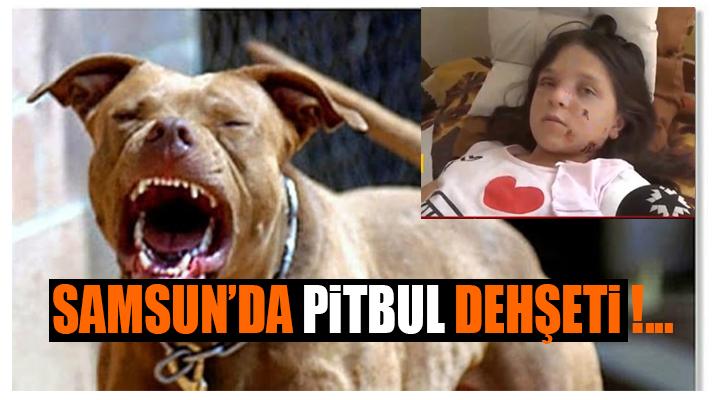 Samsun'da Pitbul Saldırısı!